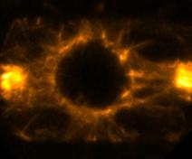 Un PPB dans une cellule racinaire entrant en division