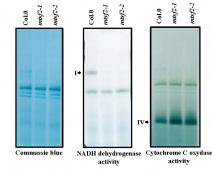 Gels BN-PAGE. Séparation des complexes respiratoires