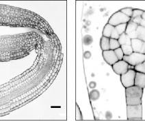Embryons d'Arabidopsis vus au microscope confocal